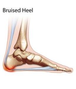 thm-bruised_heel